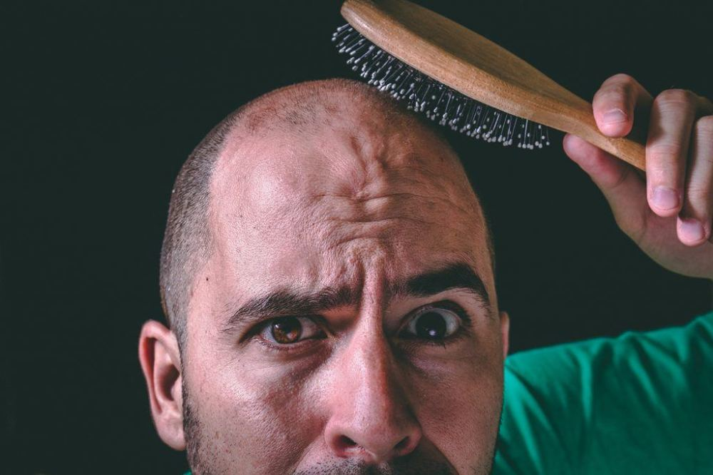 how-long-does-it-take-to-go-bald-1024x683